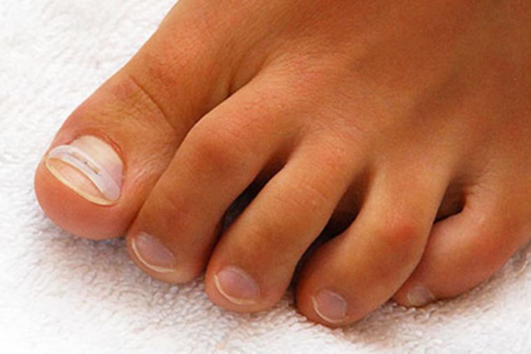 Медицинский педикюр при грибке ногтей балашиха6